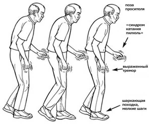 Нарушения при Паркинсонизме