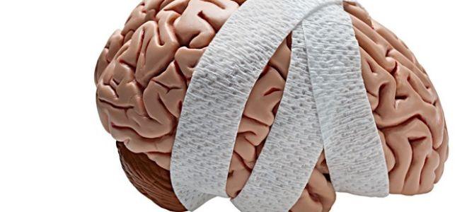 Виды черепно-мозговых травм, лечение, последствия, прогноз