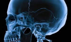 Перелом основания черепа