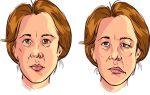 Псевдобульбарный синдром: что это такое?