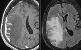 Туберкулёзный менингит: патогенез, диагностика и лечение