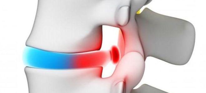 Секвестрированная грыжа позвоночника: лечить правильно!
