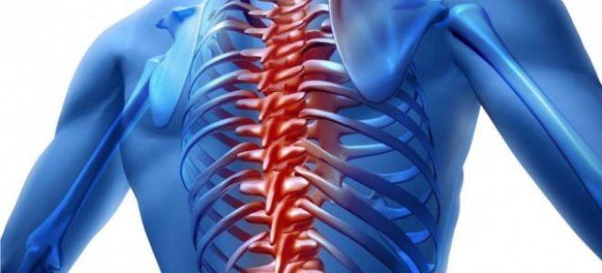 Невралгия спины: симптомы, причины и лечение