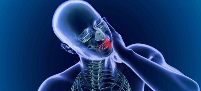 Как быстро снять приступ невралгии?