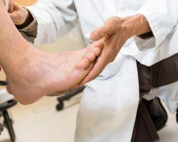 Что такое нейропатия малоберцового нерва и как лечиться заболевание