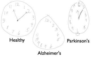 Чем отличается болезнь Альцгеймера от болезни Паркинсона?