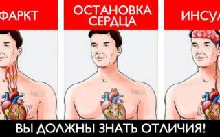 Чем отличается инсульт от инфаркта
