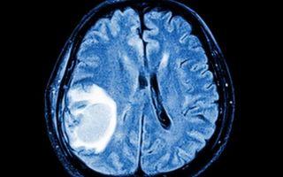 Астроцитома – «звёздная» опухоль: диагностика, лечение, прогноз