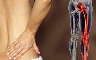 Как бороться с защемлением седалищного нерва?
