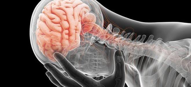 Ушиб головного мозга: симптомы, диагностика, прогноз