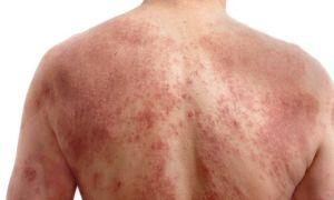 Опоясывающий лишай (герпес) – насколько страшная эта болезнь?