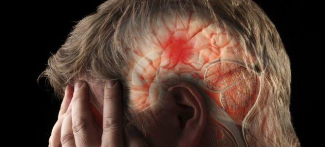 Что нужно знать об инсульте, чтобы его избежать?