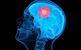 Злокачественная опухоль головного мозга (рак мозга)
