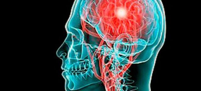 Кровоизлияние в мозг: симптомы, лечение, последствия, прогноз
