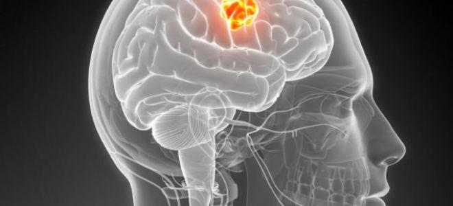 Насколько опасна доброкачественная опухоль головного мозга