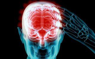 Энцефалит головного мозга — что это такое?