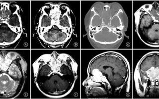 Нейробластома у детей: коварная и непредсказуемая опухоль