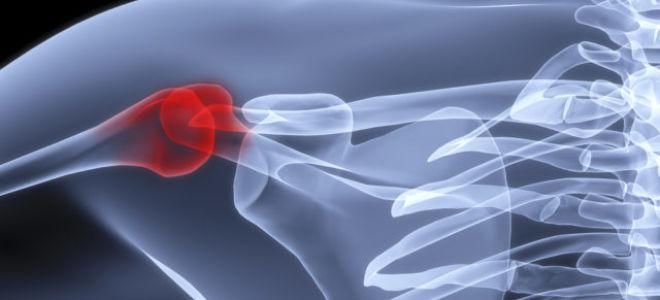 Плечелопаточный периартрит: симптомы, диагностика, методы лечения