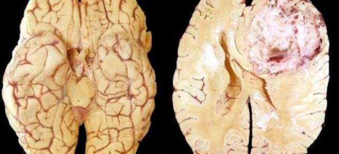 Всё об опухолях головного мозга: симптомы, причины, лечение, прогноз