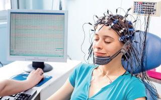 Электроэнцефалография головного мозга: что это?