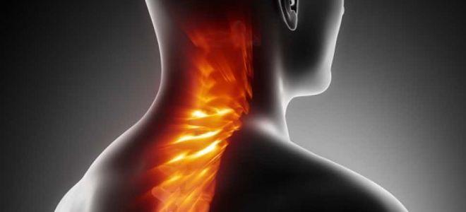 Дорсопатия шейного отдела позвоночника: симптомы и эффективное лечение