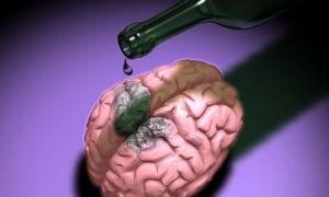 Алкогольная энцефалопатия: развитие, формы и признаки, лечение