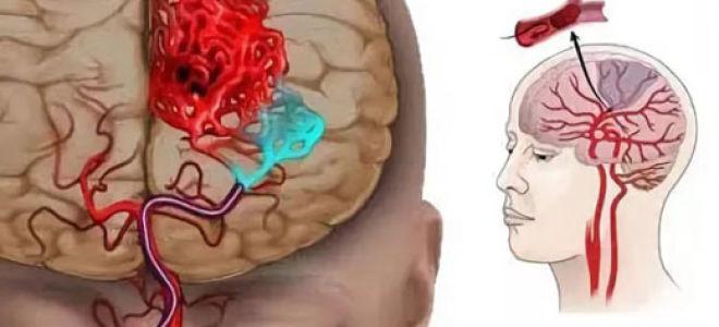 Что такое ишемия головного мозга?