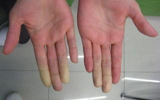 Как избавиться от вибрационной болезни