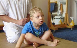 Признаки и причины ДЦП у ребенка, виды, формы