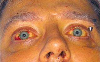 Лептоспироз у людей: причины, стадии заболевания, лечение