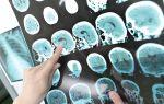 Как эффективно лечить рассеянный склероз