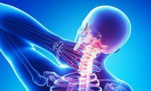 ВСД и шейный остеохондроз: взаимосвязь и особенности лечения