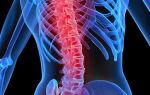 Травмы спинного мозга: виды, диагностика, лечение, реабилитация
