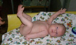 Особенности развития и течения паралича Дюшена-Эрба