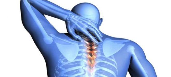Опасно ли защемление нерва в шейном отделе?