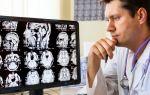 Рассеянный склероз: современные методы диагностики