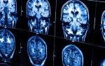 Лейкоэнцефалопатия головного мозга