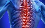 Дорсопатия грудного отдела позвоночника: причины, симптомы и лечение
