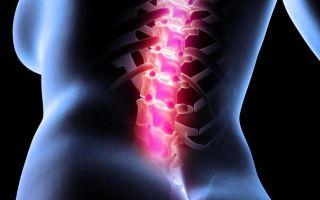 Что такое вертеброгенный синдром