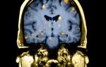 Почему возникают метастазы в головном мозге?