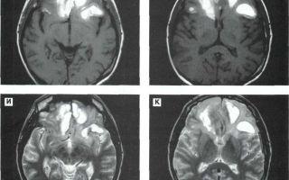 Менингеальный синдром: причины появления и лечение