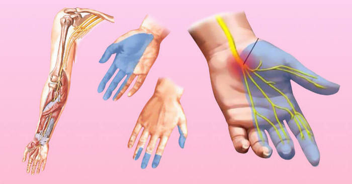 Симптомы инсульта спинного мозга