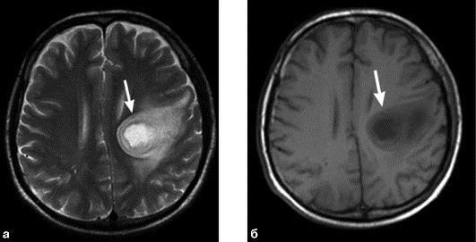 Диагностика  МРТ абсцесса