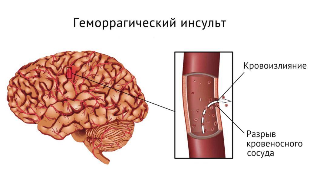 Геморрагический