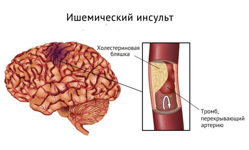Ишемический