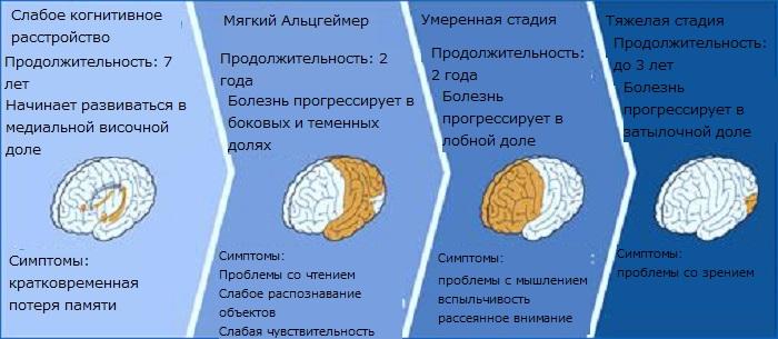 4 стадии Альцгеймера