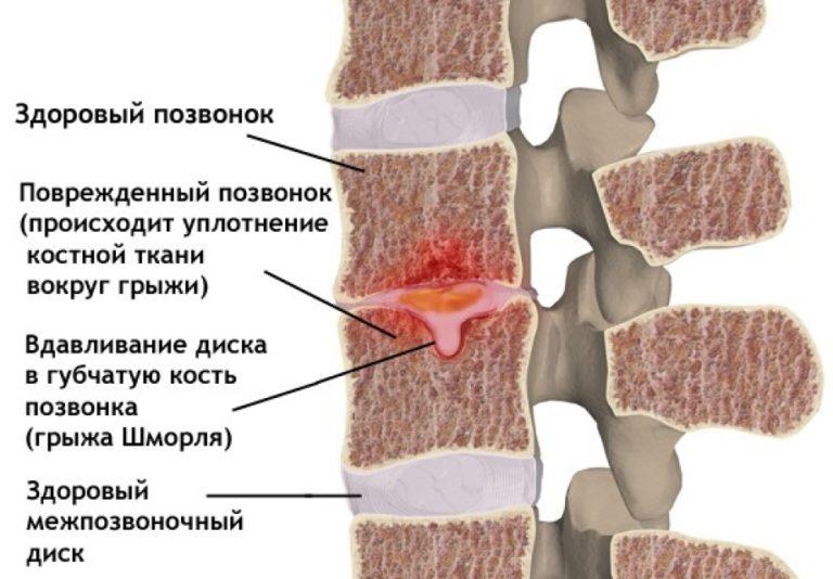 Болезни поясничного отдела позвоночника грыжа шморля