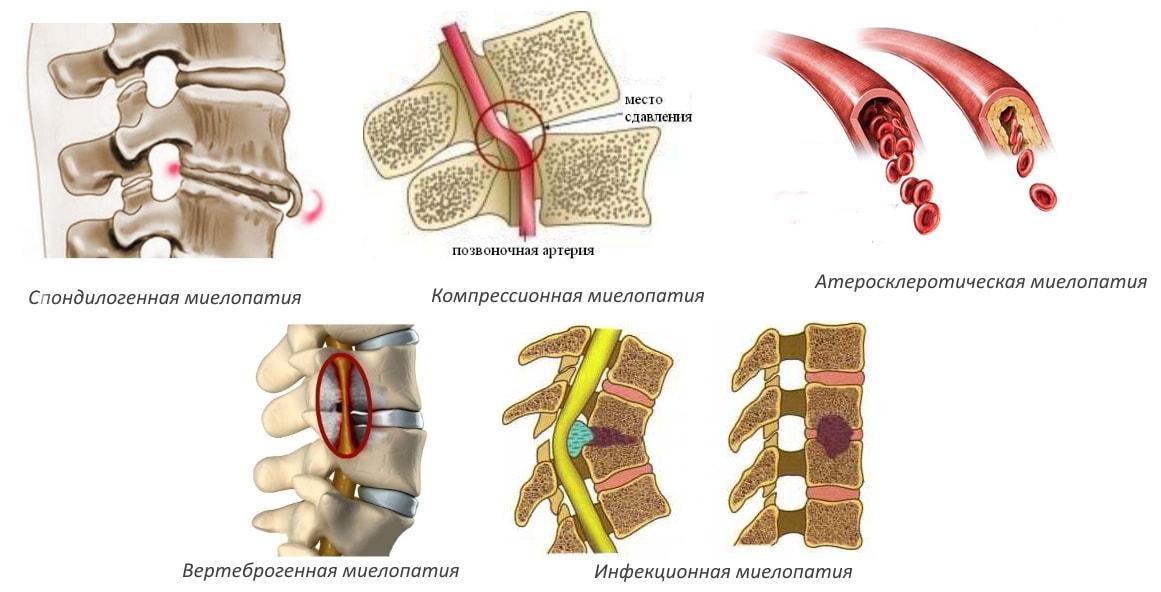 Миелопатия грудного отдела позвоночника симптомы лечение