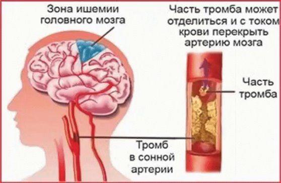 Ишемическая болезнь сосудов головного мозга симптомы