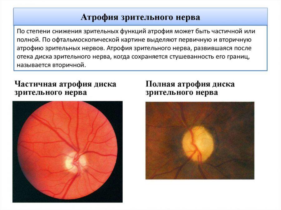 Виды атрофии